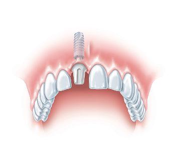 implantacja-natychmiastowa-zebow