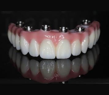 mosty-korony-protezy-na-implantach