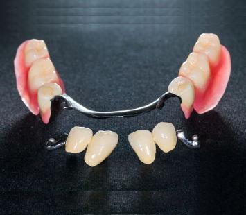 protezy-szkieletowe