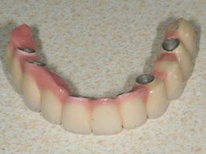 uzupelnienie-bezzebia-mostem-na-implantach-1b