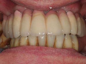 uzupelnienie-bezzebia-mostem-na-implantach-2a