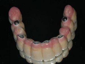 uzupelnienie-bezzebia-mostem-na-implantach-2b