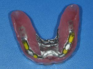 uzupelnienie-bezzebia-proteza-na-belce-na-implantach-2b
