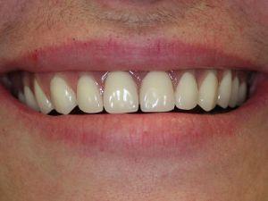 uzupelnienie-bezzebia-proteza-na-belce-na-implantach-2c
