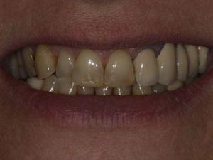 uzupelnienie-brakow-czesciowych-mostem-na-implantach-przyklad1a