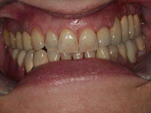 uzupelnienie-brakow-czesciowych-mostem-na-implantach-przyklad1b