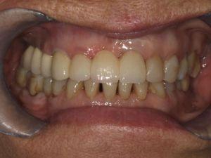 uzupelnienie-brakow-czesciowych-mostem-na-implantach-przyklad2b